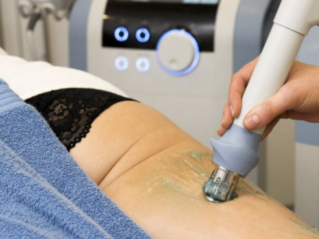 cellulite reduction, scar tissue removal, stretch mark removal treatment